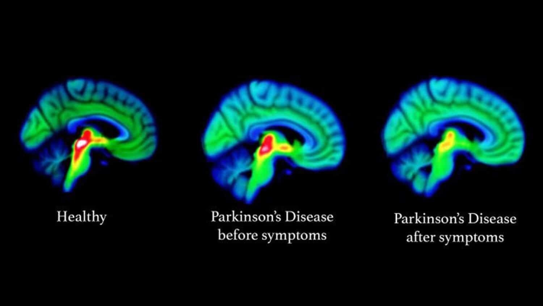 Parkinson's Disease Brain Scan CBD for Parkinson's